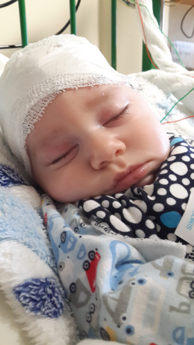 A Glimpse At What It Is Like Raising A Child With Cerebral Palsy, Severe Intractable Epilepsy And Cortical Visual Impairment after surgery hospital baby